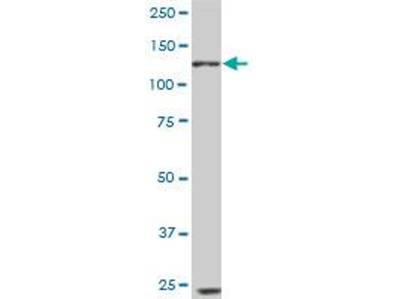 Western Blotting (WB) image for anti-EPH Receptor B6 (EPHB6) (AA 23-122), (partial) antibody (ABIN560773)