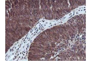 Immunohistochemistry (Paraffin-embedded Sections) (IHC (p)) image for anti-RuvB-Like 2 (E. Coli) (RUVBL2) antibody (ABIN4351487)