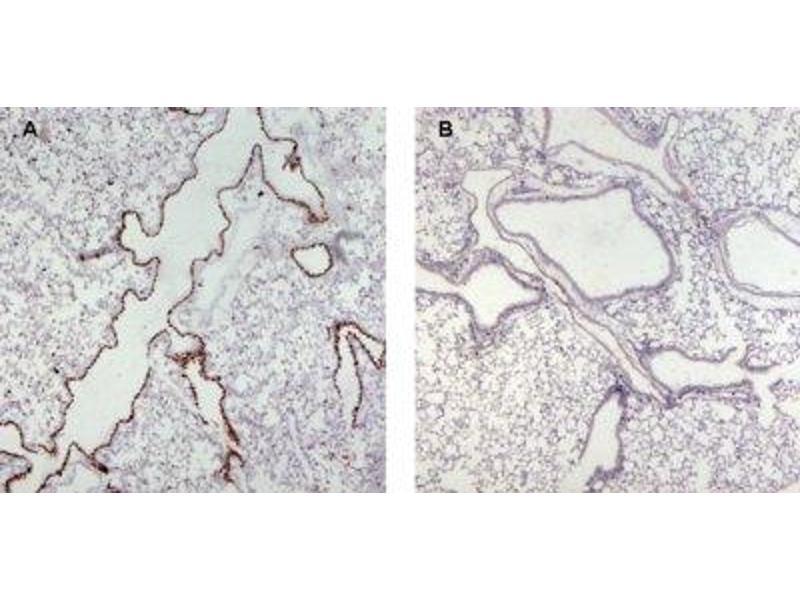 Immunohistochemistry (Paraffin-embedded Sections) (IHC (p)) image for anti-Unc-13 Homolog D (C. Elegans) (UNC13D) (Internal Region) antibody (ABIN2563976)