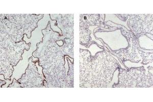 Immunohistochemistry (Paraffin-embedded Sections) (IHC (p)) image for anti-Unc-13 Homolog D (C. Elegans) (UNC13D) (Internal Region) antibody (ABIN2563976)