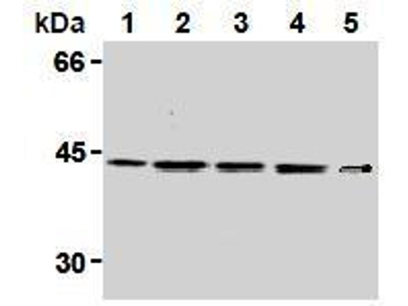Western Blotting (WB) image for anti-Mitogen-Activated Protein Kinase Kinase 1 (MAP2K1) antibody (ABIN2853620)
