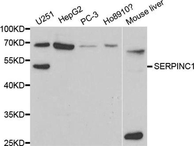 Image no. 1 for anti-Serine (Or Cysteine) Peptidase Inhibitor, Clade C (Antithrombin), Member 1 (SERPINC1) antibody (ABIN6568775)