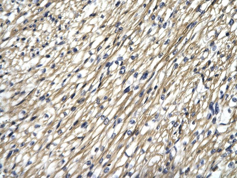 Immunohistochemistry (IHC) image for anti-Signal Transducer and Activator of Transcription 4 (STAT4) (N-Term) antibody (ABIN2777897)