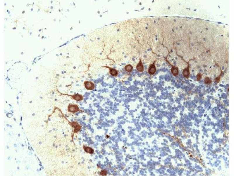 Immunohistochemistry (Paraffin-embedded Sections) (IHC (p)) image for anti-PKC delta antibody (Protein Kinase C, delta) (AA 114-289) (ABIN967942)