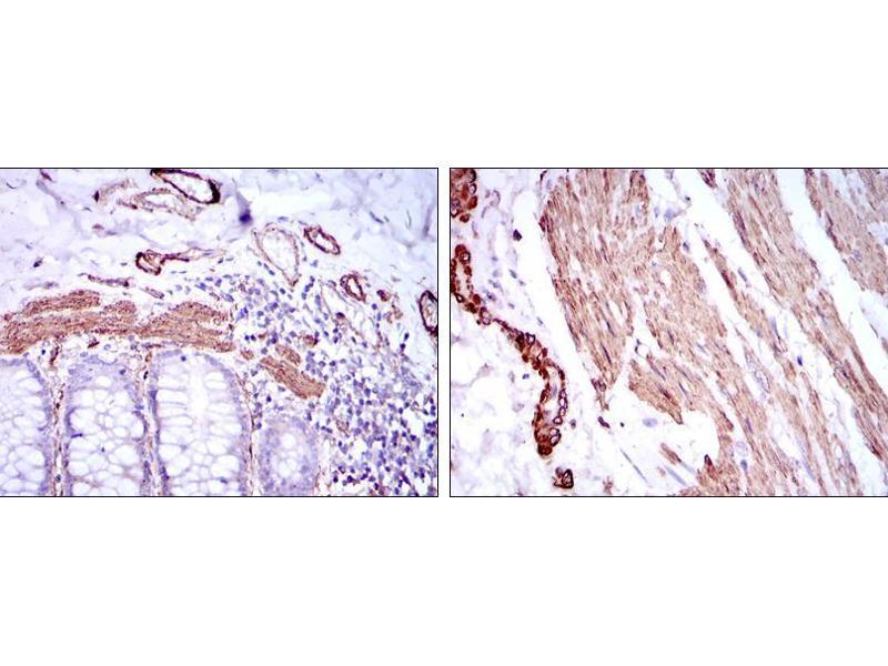 Immunohistochemistry (IHC) image for anti-Actin, alpha 2, Smooth Muscle, Aorta (ACTA2) antibody (ABIN968947)