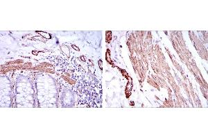 Immunohistochemistry (IHC) image for anti-Actin, alpha 2, Smooth Muscle, Aorta (ACTA2) antibody (ABIN968947)