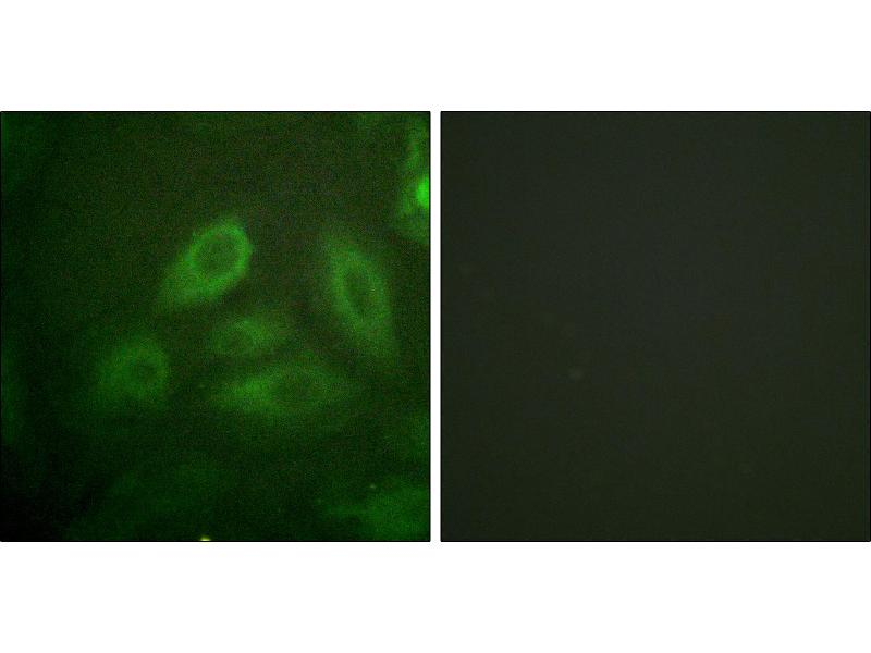 Image no. 3 for anti-Dystrophin Related Protein 2 (DRP2) (pThr514) antibody (ABIN1576126)