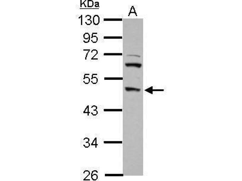 Western Blotting (WB) image for anti-Transcription Factor Dp-2 (E2F Dimerization Partner 2) (TFDP2) (Internal Region) antibody (ABIN2855370)