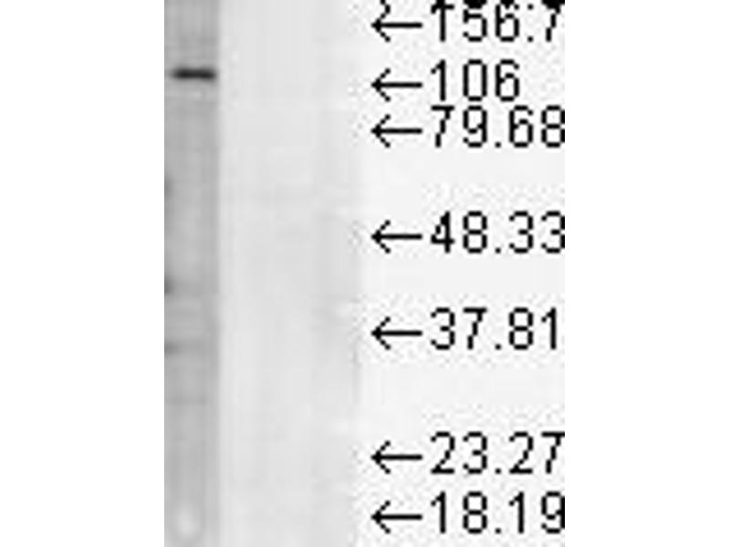 Western Blotting (WB) image for anti-LAMP1 antibody (Lysosomal-Associated Membrane Protein 1) (ABIN361797)