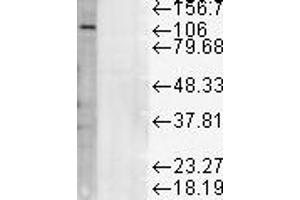 Image no. 1 for anti-Lysosomal-Associated Membrane Protein 1 (LAMP1) antibody (ABIN361797)