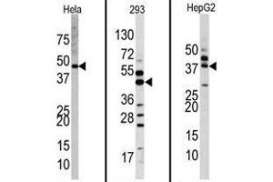 Western Blotting (WB) image for anti-ERK2 antibody (Mitogen-Activated Protein Kinase 1) (Middle Region) (ABIN359461)