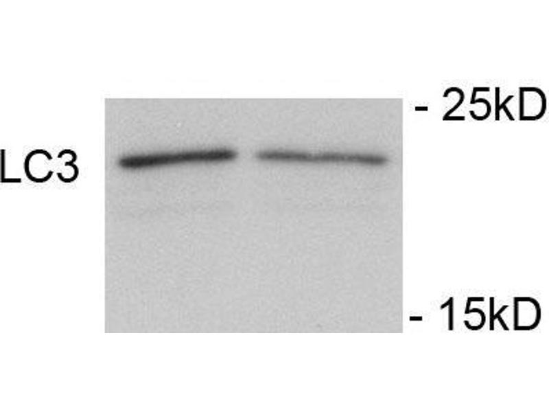 Western Blotting (WB) image for anti-Microtubule-Associated Protein 1 Light Chain 3 gamma (MAP1LC3C) (pSer12) antibody (ABIN389699)
