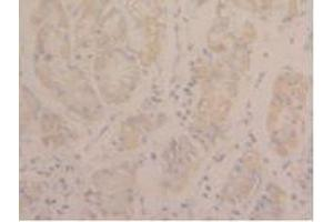 Immunohistochemistry (Paraffin-embedded Sections) (IHC (p)) image for anti-Signal Transducer and Activator of Transcription 3 (Acute-Phase Response Factor) (STAT3) (AA 335-546) antibody (ABIN5662416)