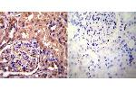 Immunohistochemistry (Paraffin-embedded Sections) (IHC (p)) image for anti-Actinin, alpha 4 (ACTN4) antibody (ABIN261463)