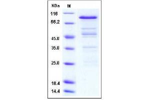 Image no. 1 for Protein Arginine Methyltransferase 3 (PRMT3) (AA 2-531) protein (GST tag) (ABIN2004088)