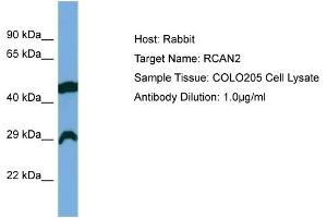 Image no. 1 for anti-Regulator of Calcineurin 2 (RCAN2) (Middle Region) antibody (ABIN2784778)