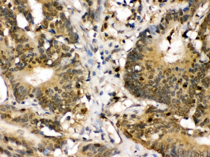 Immunohistochemistry (IHC) image for anti-Mitogen-Activated Protein Kinase Kinase 3 (MAP2K3) (AA 311-347), (C-Term) antibody (ABIN3043874)