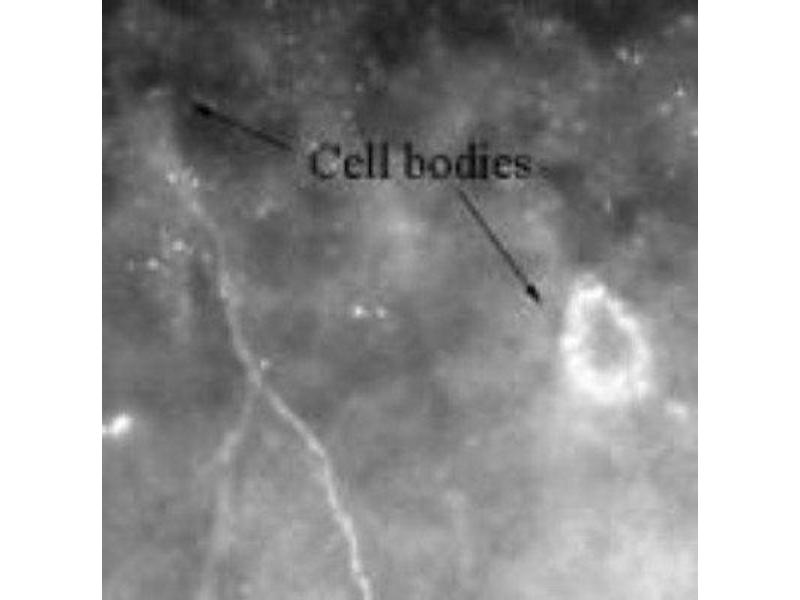 Immunofluorescence (IF) image for anti-Calcium/calmodulin-Dependent Protein Kinase (CaM Kinase) II beta (CAMK2B) antibody (ABIN4287582)