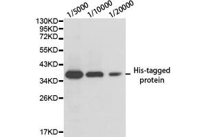 image for anti-His Tag antibody (ABIN2970881)