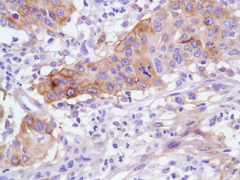 Immunohistochemistry (IHC) image for anti-TNFRSF12A antibody (Tumor Necrosis Factor Receptor Superfamily, Member 12A) (C-Term) (ABIN1688720)