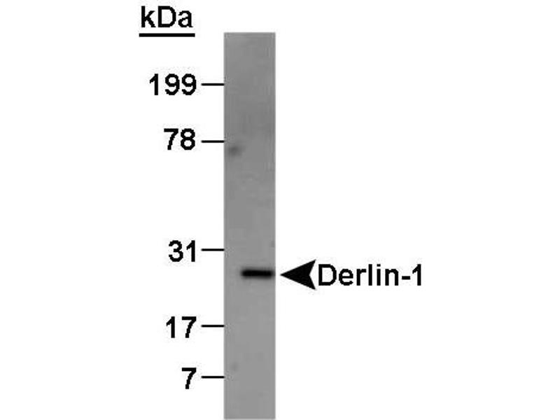 Western Blotting (WB) image for anti-Der1-Like Domain Family, Member 1 (DERL1) (AA 200-251), (C-Term) antibody (ABIN151899)