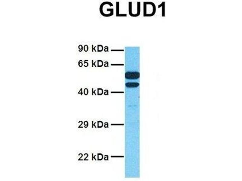 Western Blotting (WB) image for anti-Glutamate Dehydrogenase 1 (GLUD1) (N-Term) antibody (ABIN2782330)