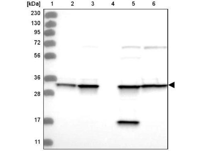 Western Blotting (WB) image for anti-Annexin A5 (ANXA5) antibody (ABIN4280830)