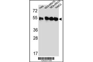 Western Blotting (WB) image for anti-TUBB2C antibody (Tubulin, Beta, 2C) (Center) (ABIN2498119)