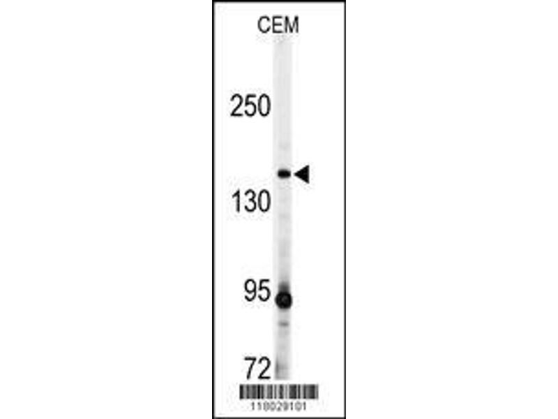 Western Blotting (WB) image for anti-ADAMTS13 antibody (ADAM Metallopeptidase with Thrombospondin Type 1 Motif, 13) (AA 829-858) (ABIN391641)