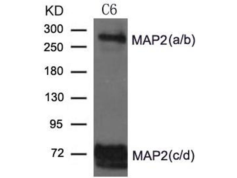Image no. 1 for anti-Microtubule-Associated Protein 2 (MAP2) (AA 1819-1823) antibody (ABIN6267762)