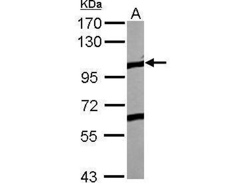 Western Blotting (WB) image for anti-EPH Receptor A4 (EPHA4) (Internal Region) antibody (ABIN2854457)