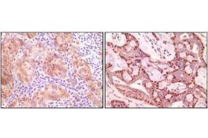 Immunohistochemistry (IHC) image for anti-Synuclein, gamma (Breast Cancer-Specific Protein 1) (SNCG) antibody (ABIN3210017)
