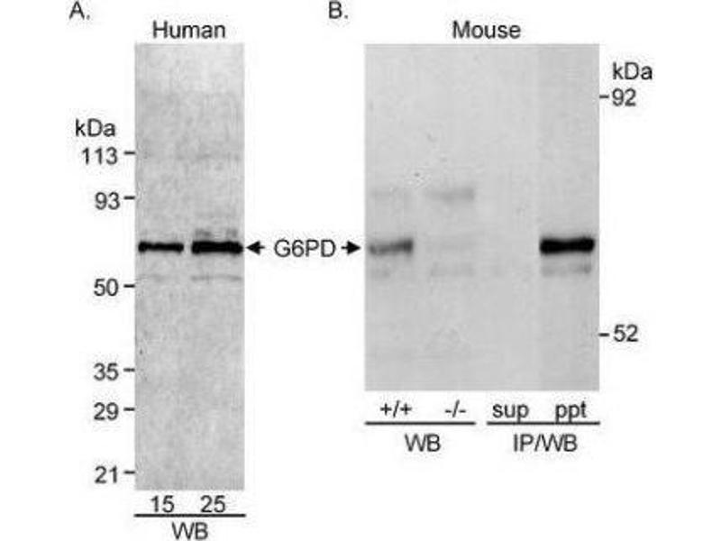 Western Blotting (WB) image for anti-Glucose-6-Phosphate Dehydrogenase (G6PD) (AA 50-100) antibody (ABIN151702)