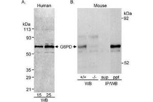 Western Blotting (WB) image for anti-Glucose-6-Phosphate Dehydrogenase (G6PD) (AA 50-100) antibody (ABIN151702)