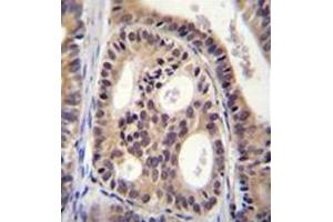 Image no. 1 for anti-Sperm Antigen with Calponin Homology and Coiled-Coil Domains 1-Like (SPECC1L) (AA 115-144), (N-Term) antibody (ABIN951832)