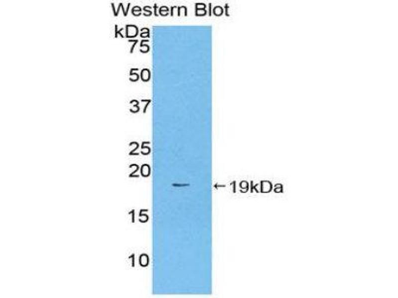 Western Blotting (WB) image for anti-Coagulation Factor II (thrombin) (F2) (AA 44-200) antibody (ABIN1077942)