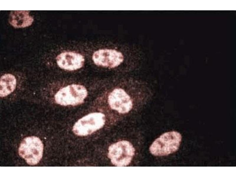 image for anti-RuvB-Like 2 (E. Coli) (RUVBL2) (AA 180-228) antibody (ABIN968851)