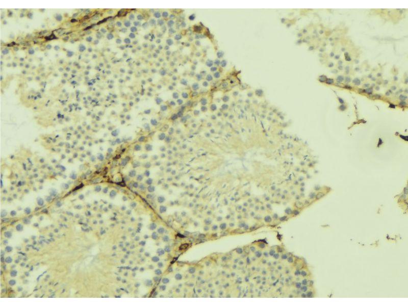 Immunohistochemistry (IHC) image for anti-UDP-Gal:betaGlcNAc beta 1,4- Galactosyltransferase, Polypeptide 3 (B4GALT3) antibody (ABIN6258613)