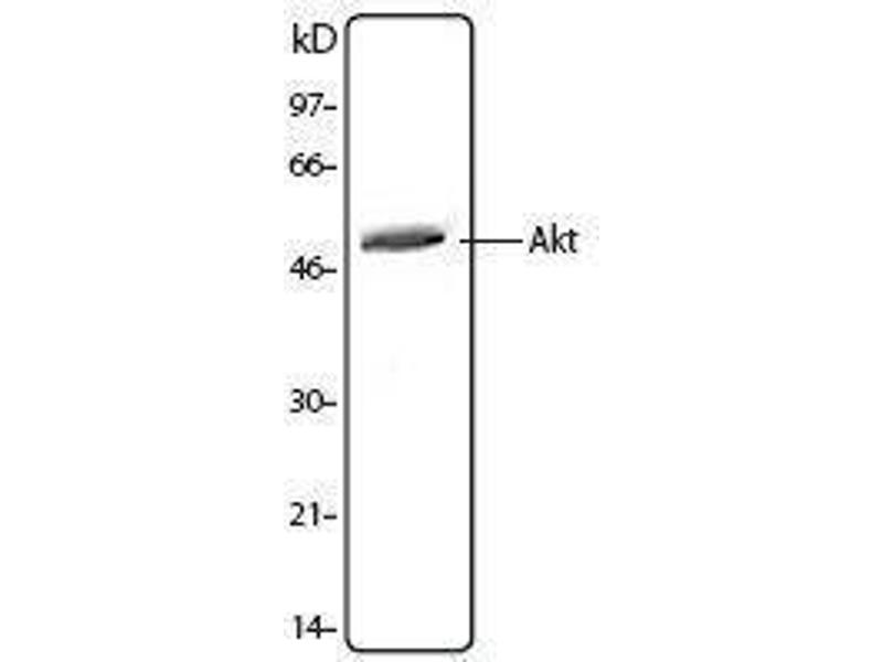 Western Blotting (WB) image for anti-AKT antibody (V-Akt Murine Thymoma Viral Oncogene Homolog 1) (ABIN2666122)