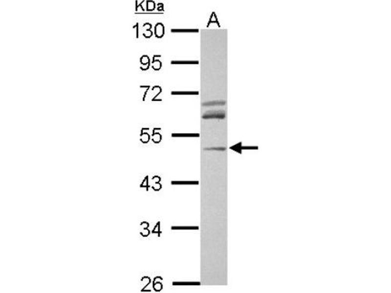 Western Blotting (WB) image for anti-ACTR3 antibody (ARP3 Actin-Related Protein 3 Homolog (Yeast)) (Center) (ABIN4278164)