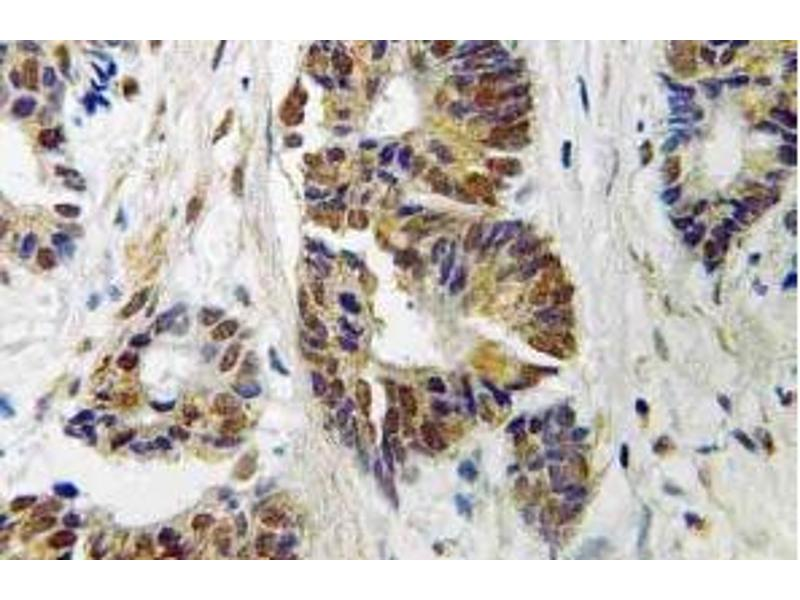 Immunohistochemistry (Paraffin-embedded Sections) (IHC (p)) image for anti-Adrenergic, Beta, Receptor Kinase 1 (ADRBK1) antibody (ABIN499029)