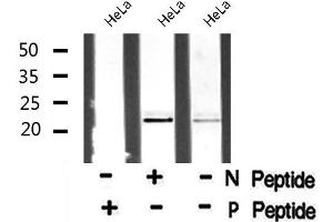 Image no. 1 for anti-Heart and Neural Crest Derivatives Expressed 1 (HAND1) (pSer98) antibody (ABIN6271292)