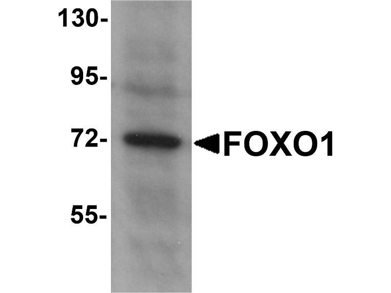 Western Blotting (WB) image for anti-FOXO1 antibody (Forkhead Box O1) (N-Term) (ABIN2439863)