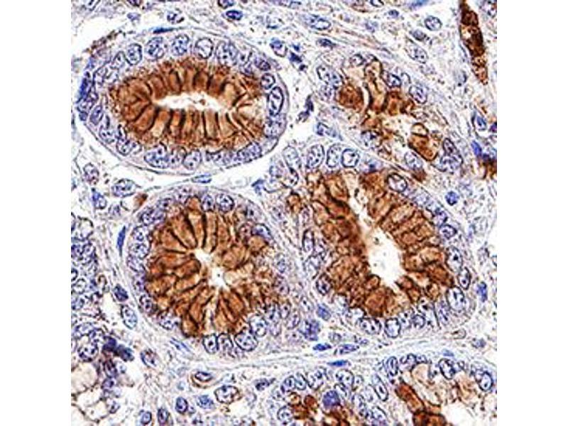 Immunohistochemistry (IHC) image for anti-AXL Receptor tyrosine Kinase (AXL) (AA 33-440) antibody (ABIN5012837)