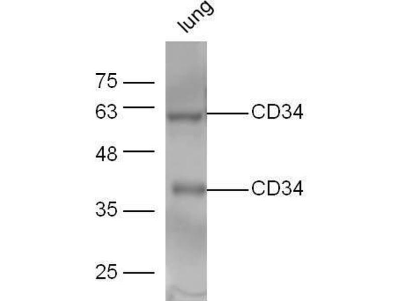 Western Blotting (WB) image for anti-CD34 Molecule (CD34) (AA 312-350) antibody (ABIN671361)