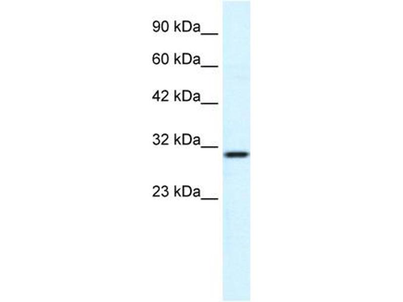 Western Blotting (WB) image for anti-FLJ20729 (C-Term) antibody (ABIN183040)