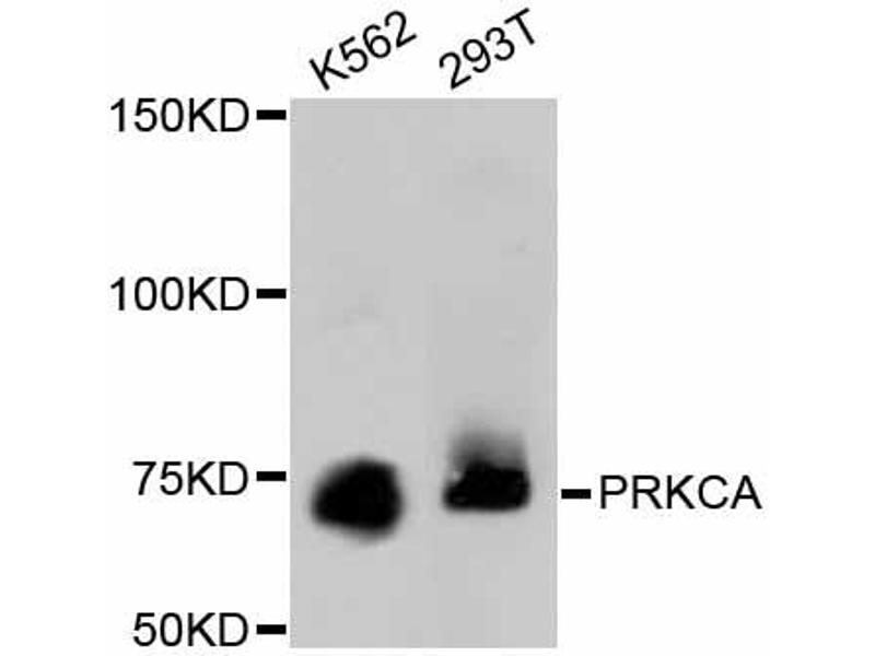 Western Blotting (WB) image for anti-Protein Kinase C, alpha (PKCa) antibody (ABIN4904772)