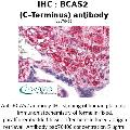 anti-BCAS2 anticorps (Breast Carcinoma Amplified Sequence 2) (C-Term)
