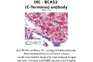 Image no. 2 for anti-Breast Carcinoma Amplified Sequence 2 (BCAS2) (C-Term) antibody (ABIN1732243)