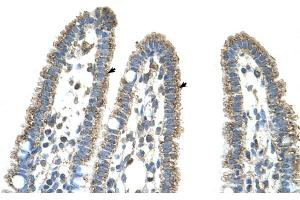 Image no. 3 for anti-Carbamoyl-Phosphate Synthase 1, Mitochondrial (CPS1) (Middle Region) antibody (ABIN2782319)